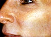 Ciruga Plstica Facial Procedimientos Faciales San