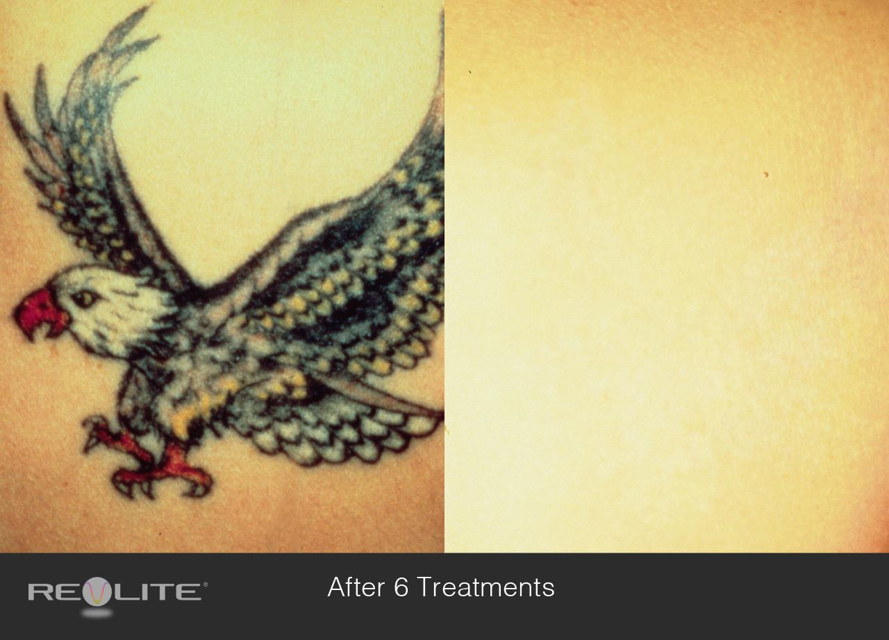 Tattoo removal cosmetic dermatology walnut creek ca 94598 for Tattoo removal maryland