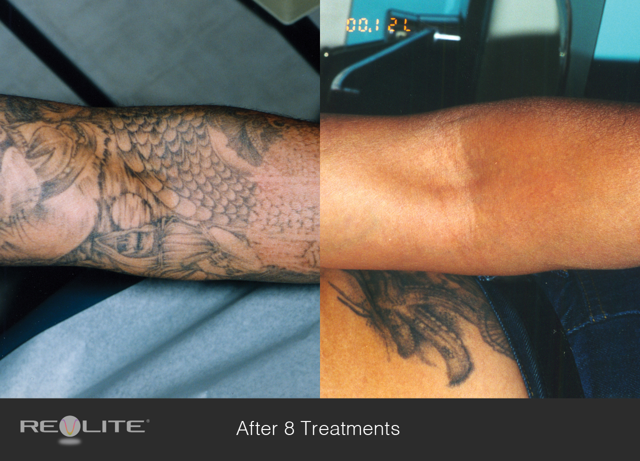 Tattoo Removal Cosmetic Dermatology Walnut Creek Ca 94598
